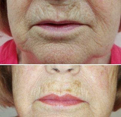 micropigmentacion de labios en barcelona