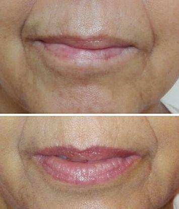 micropigmentacion de labios en centro de belleza