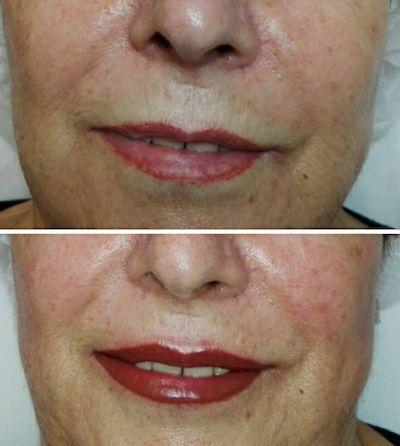 micropigmentacion de labios en centro de estetica