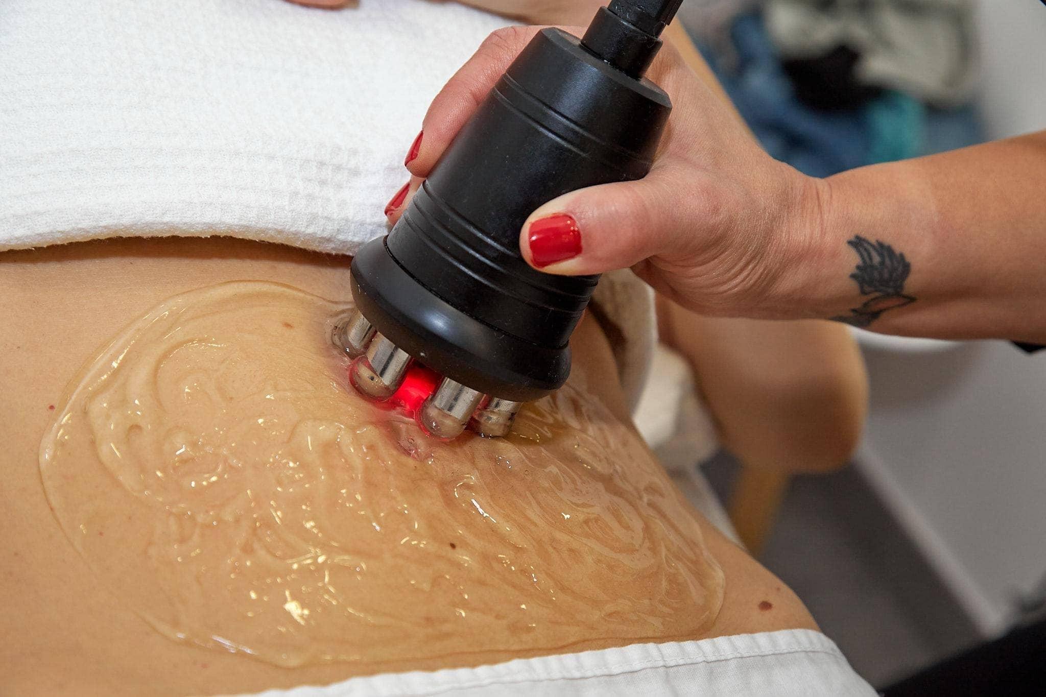 Tratamientos corporales para estética